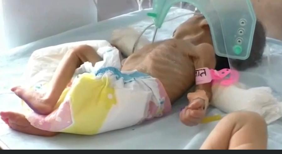 Ölmüş övladını basdırarkən torpaqdan diri uşaq tapdılar – VİDEO/FOTO