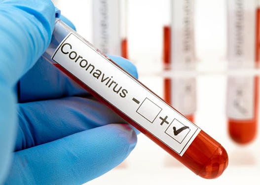 Daha 226 nəfər koronavirusa yoluxdu